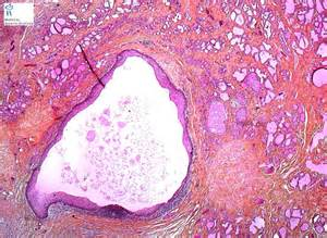 is thyroid cyst dissolve? picture 2