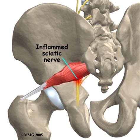 hernia pushing on the el in the right lower back picture 10
