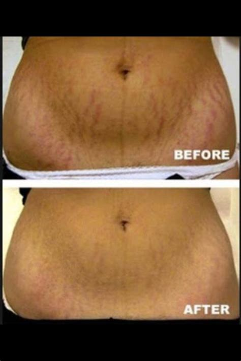 dmae work on stretch marks picture 14