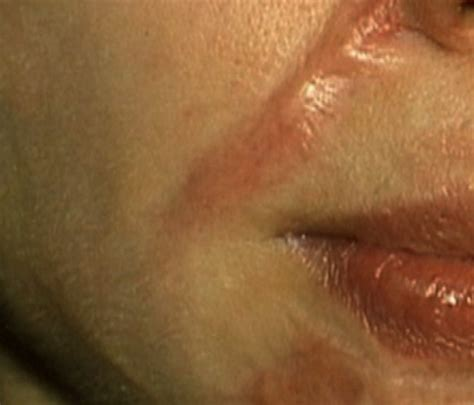 warts on face removal picture 5