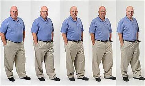 carolina weight loss surgery picture 15