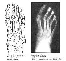 joint pain in hands and feet picture 8