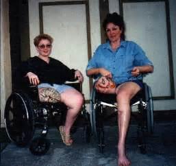 female artificial leg stories picture 14