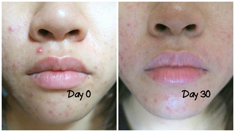 accutane reviews picture 1