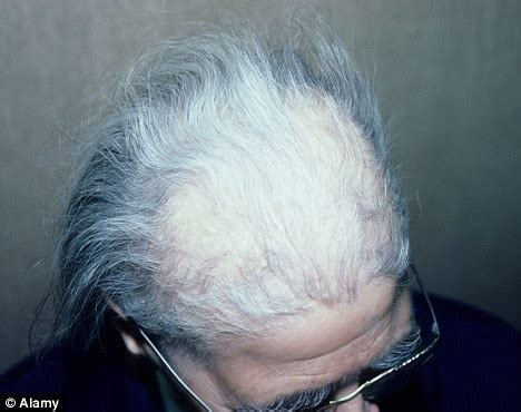 illness with dry skin and hair loss picture 4