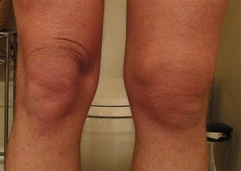 knee joint swelling picture 1