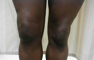 swollen knee joint picture 9