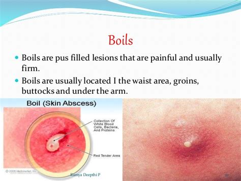 causes of boils picture 1