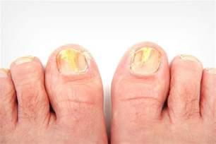 will lysol kill toenail fungus picture 5