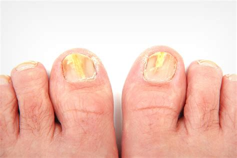 circulation and toenail fungus picture 1