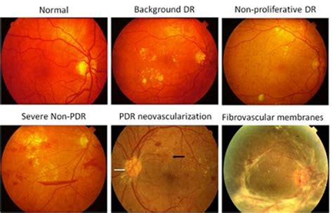 norman diabetic retinopathy picture 10