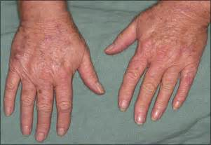 skin on hands picture 6