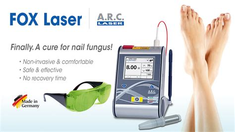 laser for nail fungus in wisconsin picture 1