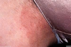 what to use for yeast infections picture 6