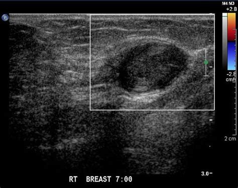 bilateral low density foci thyroid picture 10