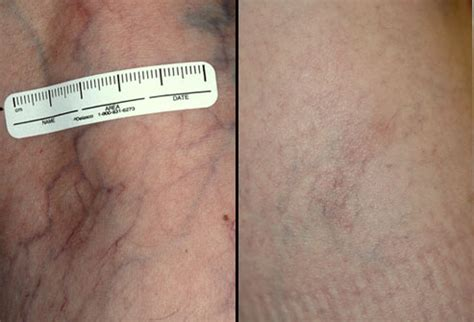 skin care vein removal picture 5