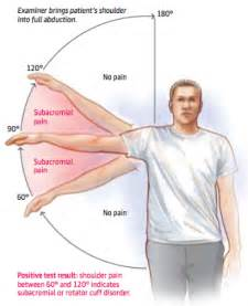 joint impingement syndrome shoulder diagnosis treatment picture 17