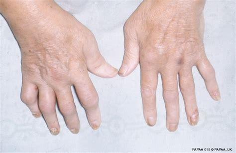 arthritis picture 13