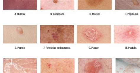 medical dictionary skin disorders picture 9