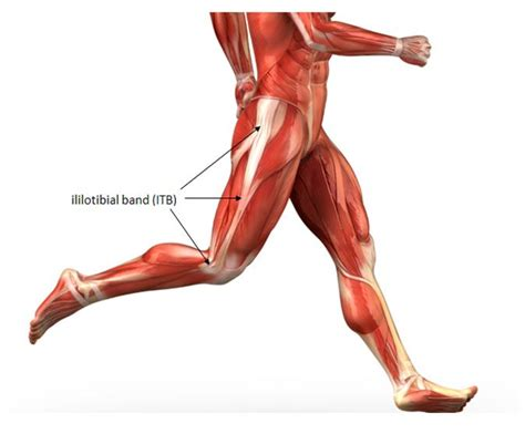 hardening of thigh muscle picture 9