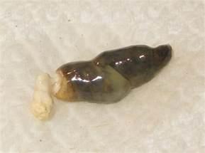 white bowel movement picture 19
