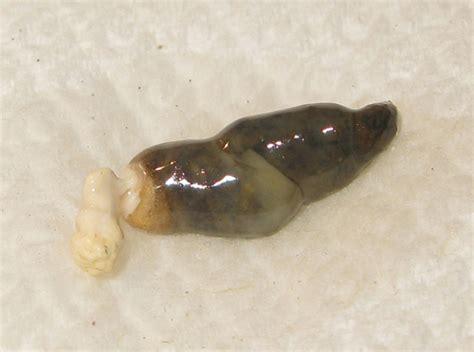 white bowel movement picture 7