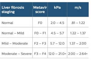 grading for liver biopsy results picture 2