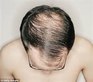 what doctor do i see about losing my hair picture 2