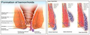 hemorrhoid anemia picture 9