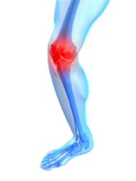 knee joint supplements picture 14