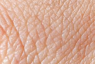 skin disorders of the ocks picture 18