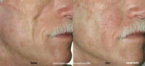 is sculptra good for acne scaring picture 17