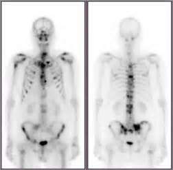 full bladder on a bone scan picture 8