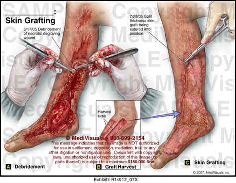 friction burn and skin grafting picture 14