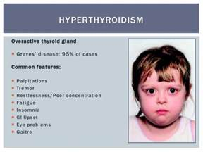 childhood overactive thyroid picture 10