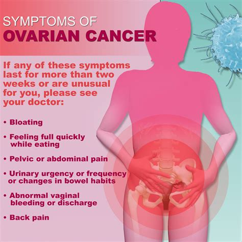 ovarian intestinal cancer picture 1