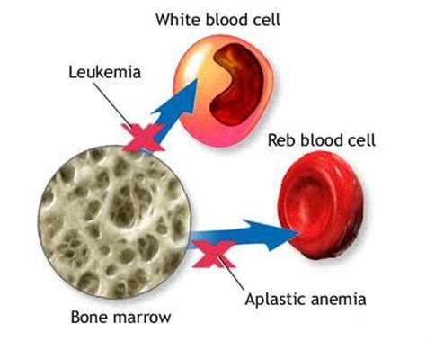 what is bone & bone marrow homeopathic used picture 11