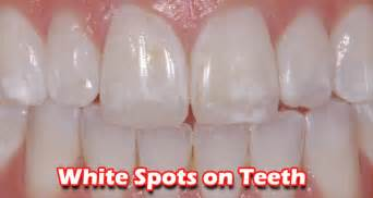 how to reduce white spots from skin picture 3