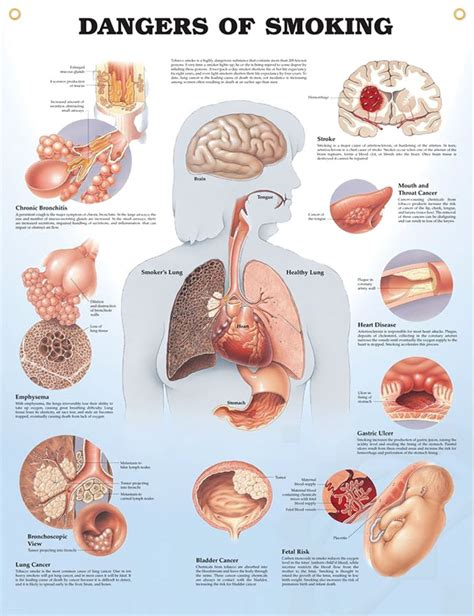 ill workcool that will workbacterial lung infection picture 16
