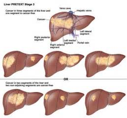 lesions on the liver picture 13