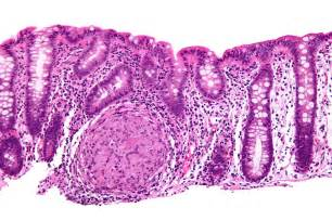 colon illnesses picture 17