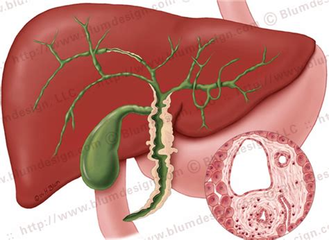 cirrhosis picture 1