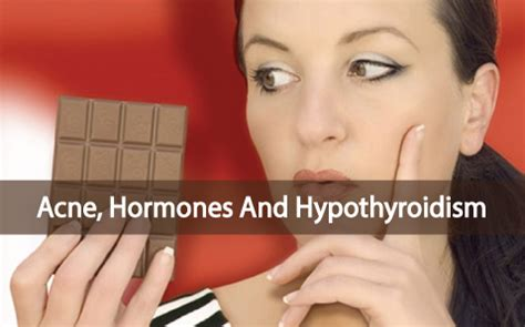 acne skin care and hashimotos picture 1