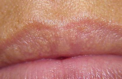 hair and skin sores picture 1