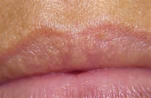 symptom little white p on bottom lip picture 3