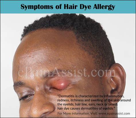 allergic reaction symptoms hair dye picture 2