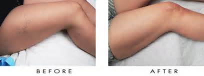 az vein skin rejuvenation picture 18