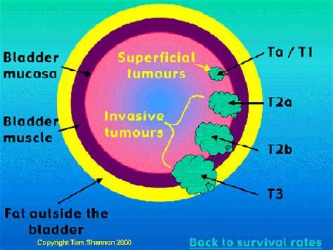 invasive bladder cancer picture 6