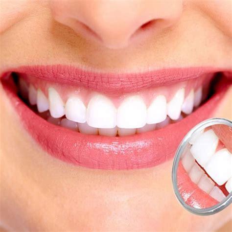 white teeth california picture 15