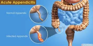 intestinal infection symptoms picture 15